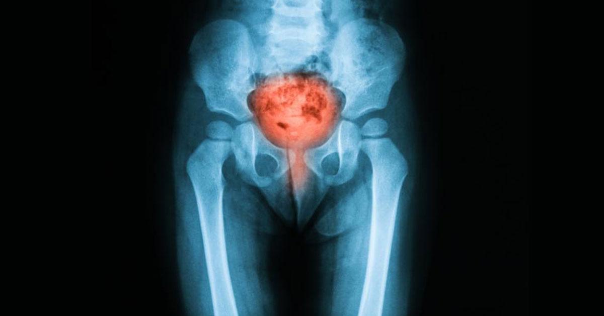 Διάγνωση καρκίνου Ουροδόχου