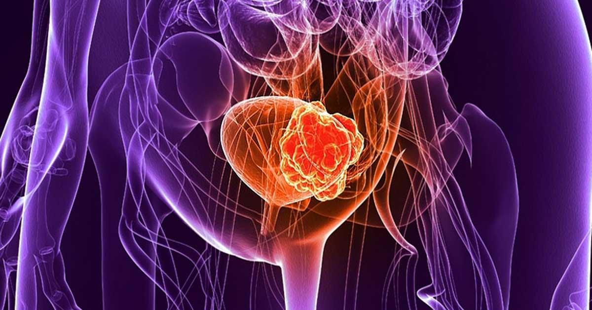 Συμπτώματα Καρκίνου Ουροδόχου