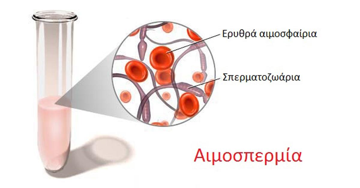 Αιμοσπερμία