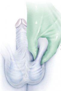 Διάγνωση Κιρσοκήλης