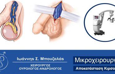 Κιρσοκήλη Θεραπεία