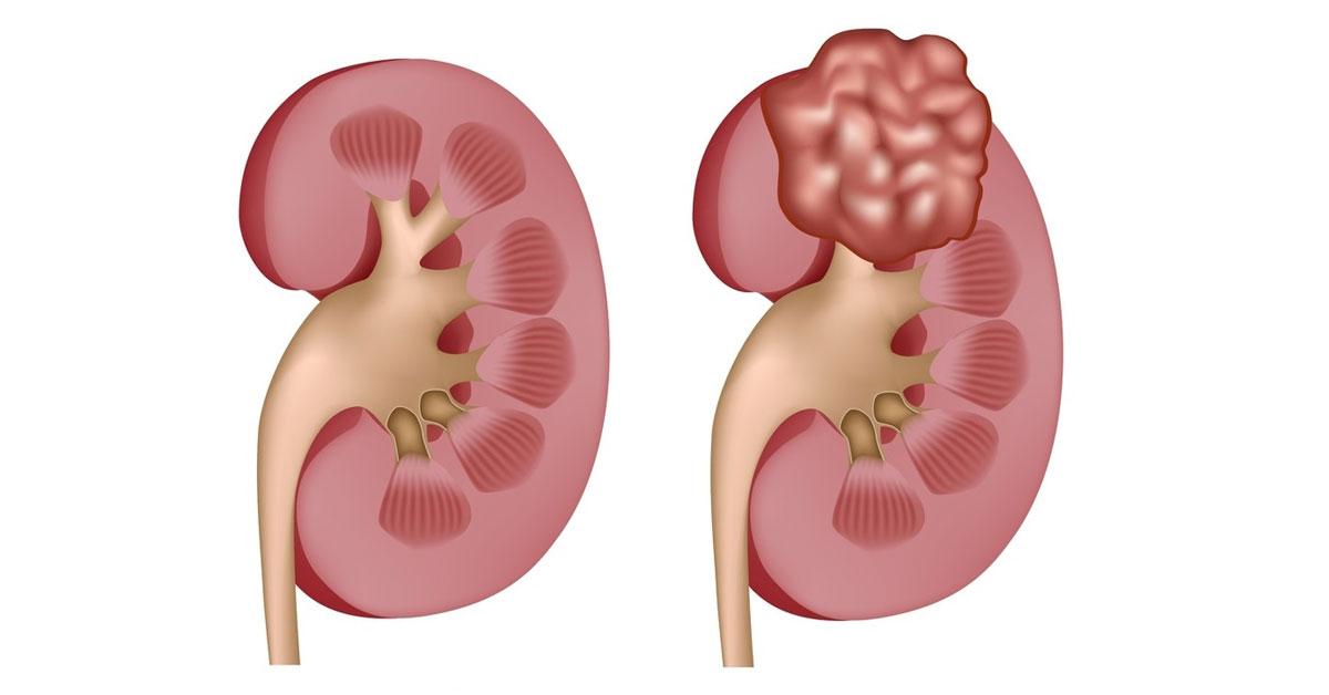 Καρκίνος του Νεφρού